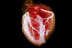Lowering cholesteral picture 7