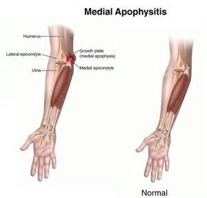fi lupivestin 500 medicine fr knee pain picture 1