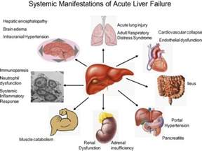acute liver damage from indocin picture 2