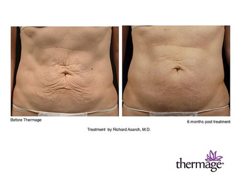 skin tightening for stomach picture 6