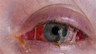 bacterial conjunctivitis picture 6