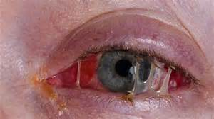 bacterial pink eye picture 7