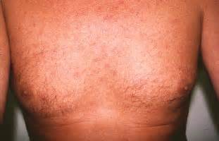 skin lesions of hiv positive patients picture 15