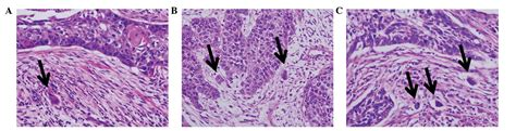 Colon carcinoma picture 18