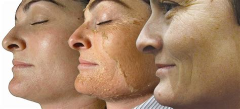 glycolic acid acne picture 15