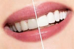 beverly hills tooth bleaching picture 3