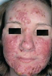 causes severe acne picture 1