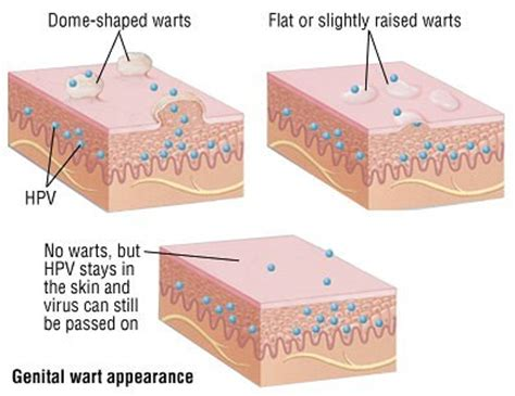can alkalizing the body help with genital warts picture 7