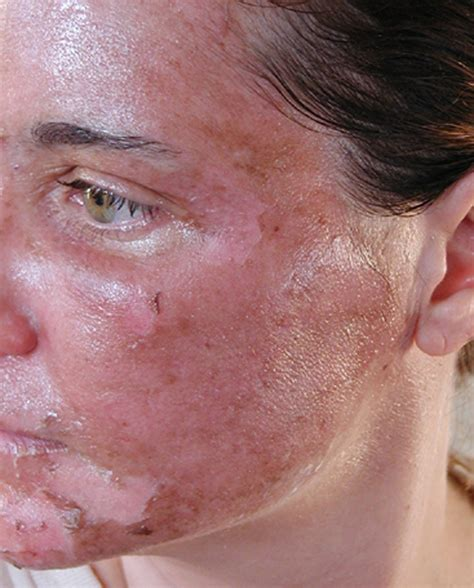 is glycolic acid ls good for acne scaring picture 10