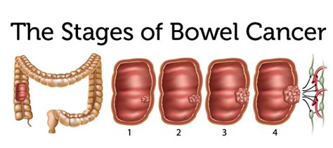 colon cancer in advanced stages picture 3