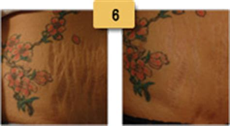 captiva sm intense stretch mark therapy with picture 11
