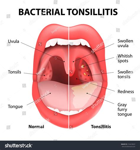 bacterial virus white pus on tonsils picture 5