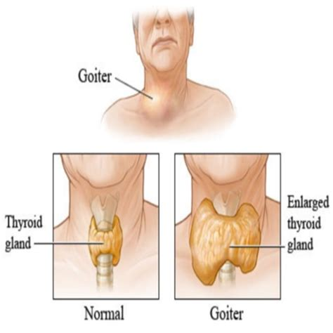 what herbs can prove a hypervascular thyroid picture 14
