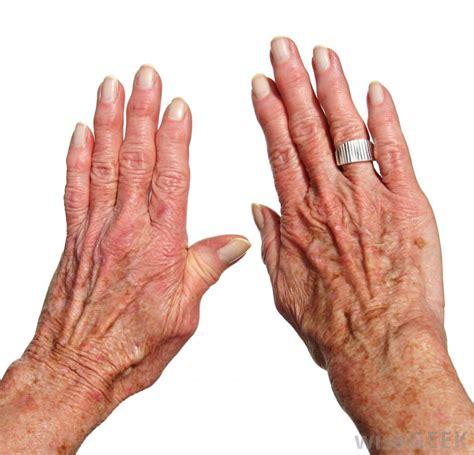 arthritis picture 10