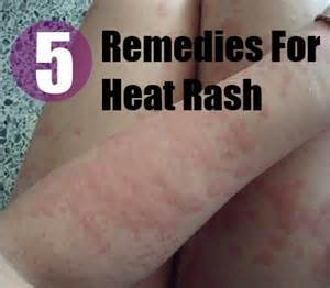 homemade herbal healing remedies picture 13