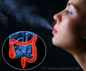 colon cancer smoking picture 2