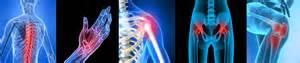 arthritis degenerative joint disease picture 6