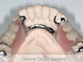 chromium and stained teeth picture 9