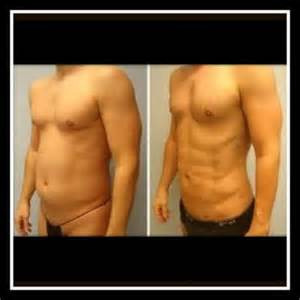 lipo 6 before and after pics picture 2