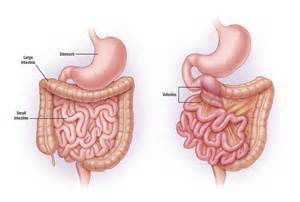 intestinal malrotation picture 3