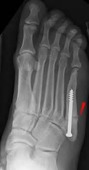 ankle joint effusion picture 6