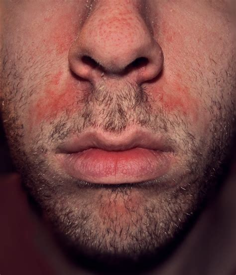yeast infections in the mouth picture 5