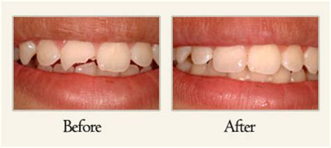 san diego teeth bonding picture 11
