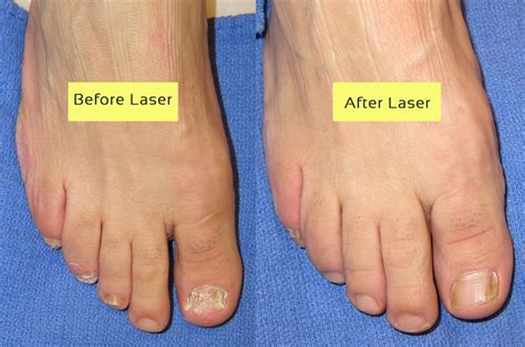nail fungus laser treatment oklahoma picture 3
