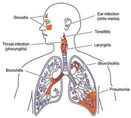 bacterial infection of the bronchial tubes picture 9