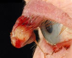 pus in the eye medical term picture 2