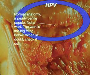 pap smears test genital warts picture 9