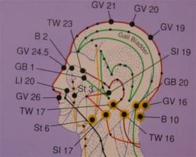 acupuncture pain relief picture 17