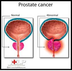 What are the outcome of prostate cancer picture 9