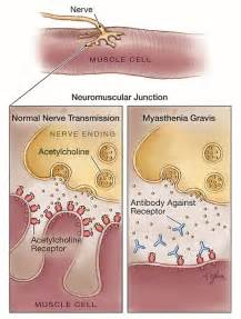 ama muscle disease picture 1