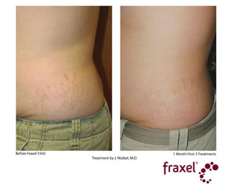 cool beam laser for stretch marks picture 10