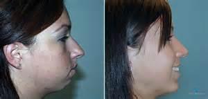 vaginal lip reduction picture 9