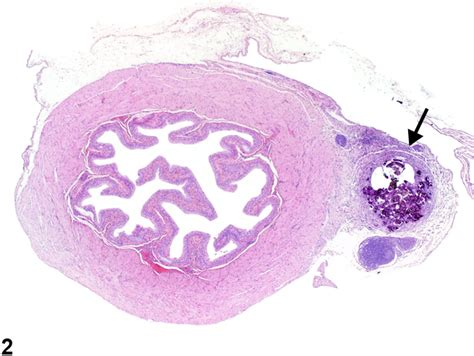 study of the female bladder picture 15