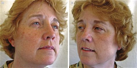 face wrinkles afrer hysterectomy picture 17