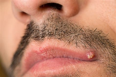 cause of pimple growths on the lips picture 6
