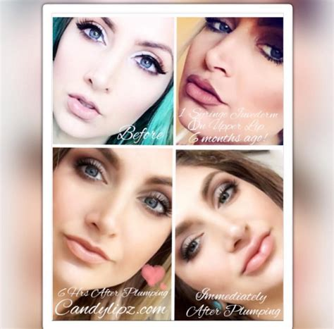 lip injections oregon collagen picture 8