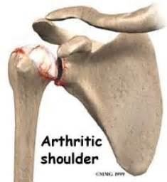 arthritis of the ac joint of the shoulder picture 9