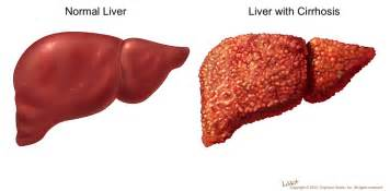 sclerosis of the liver picture 6