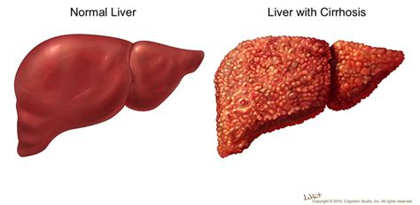 early cirrhosis of the liver picture 5