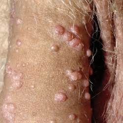 genital warts infected penis picture 18