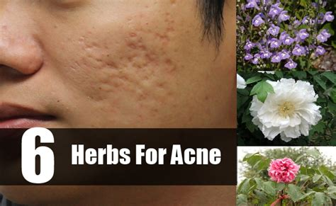 western medicine for acne picture 9