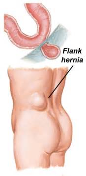 female doctor hernia check picture 2