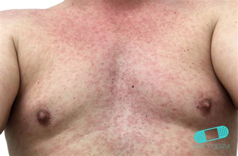 dermatology skin rashes pictures picture 13