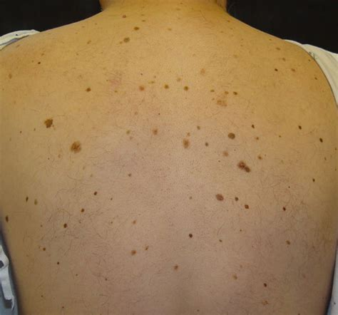 brown spots on skin picture 13