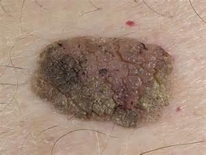 verruca vulgaris picture 9