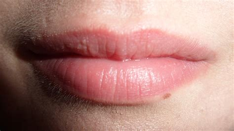 white pimples on lips picture 6